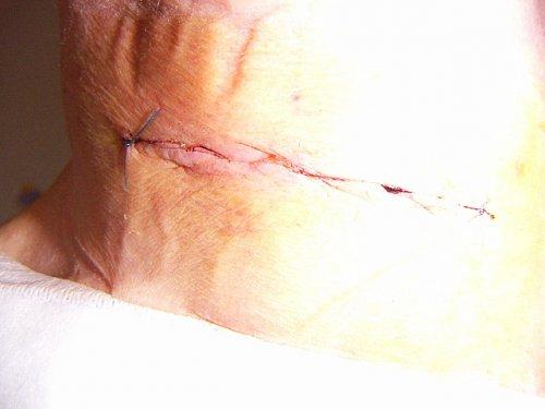 4 dni po operácii.jpg
